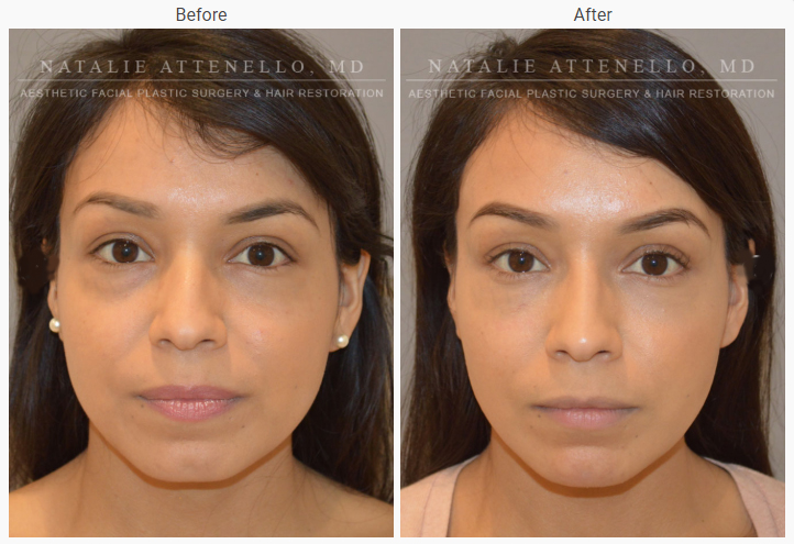 A female patient staring at the camera before surgery and the same patient staring at the camera after a rhinoplasty.