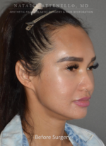 Hairline Lowering/Forehead Reduction